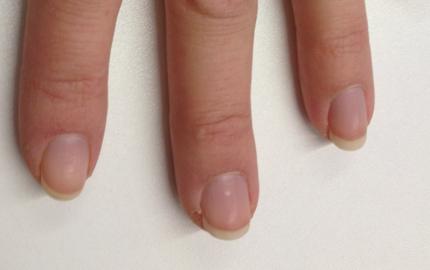 vita fläckar under naglarna
