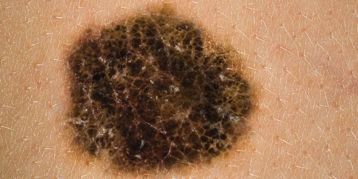 cancer i hårbotten symptom