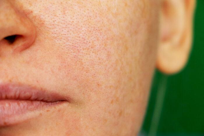 hudfläckar i ansiktet
