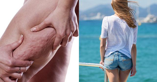 få bort celluliter på benen