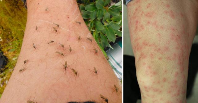 allergisk mot mygg
