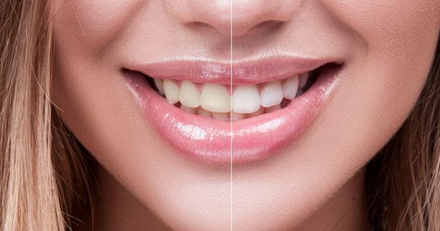 ilande tänder efter tandblekning
