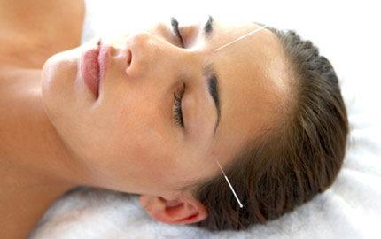 vad är akupunktur bra för