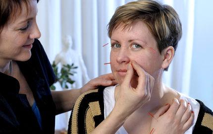Jag blev hjalpt med akupunktur