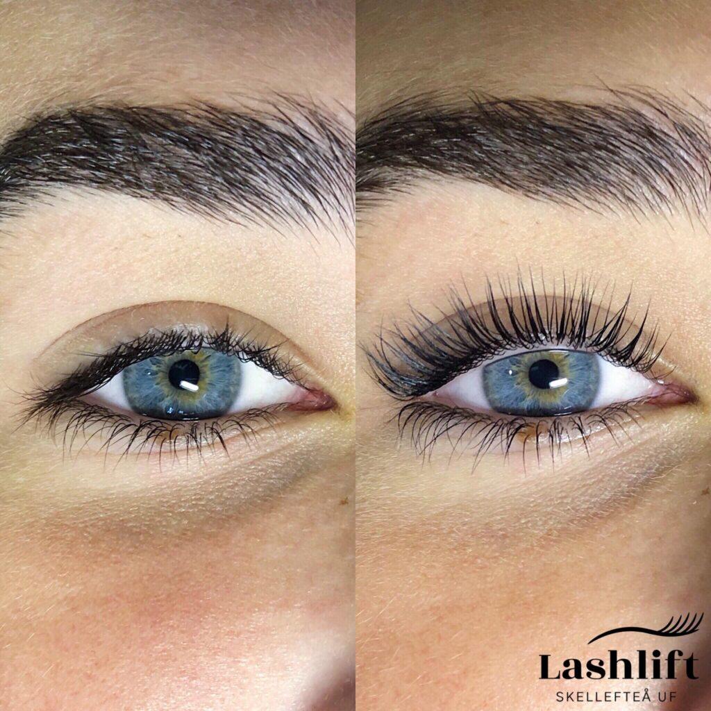 nackdelar med ögonfransförlängning